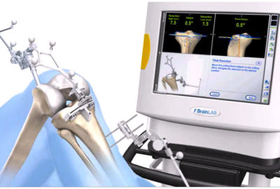 Computer Aided Navigation For Knee Replacement