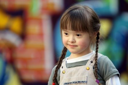 downs-syndrome-girl