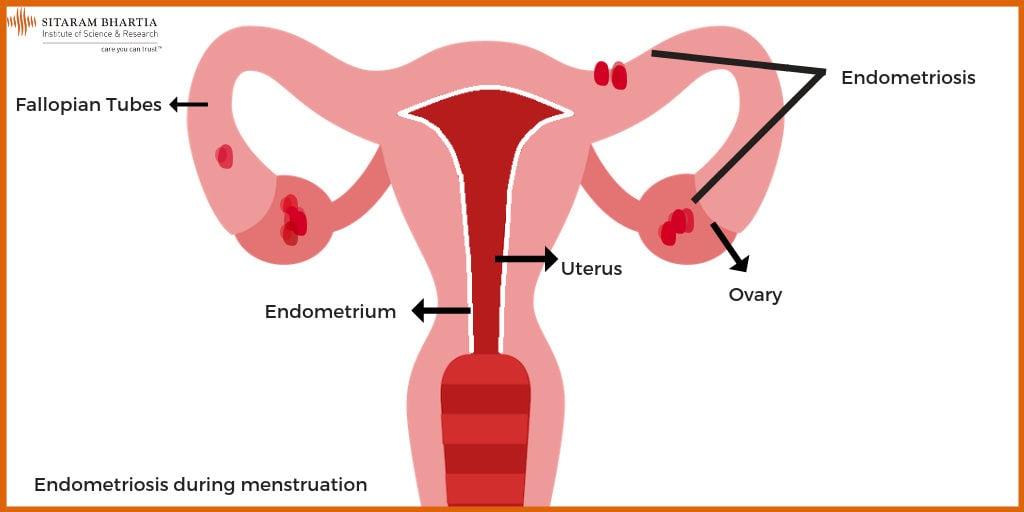 Endometriosis and Pregnancy: Yes, it is possible!   Sitaram