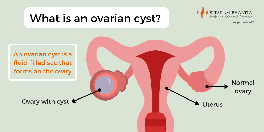 Ovarian Cyst - Is Surgical Treatment The Right Option?