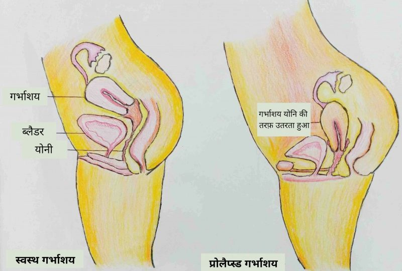 Gynecology Archives | Sitaram Bhartia Institute of Science and Research