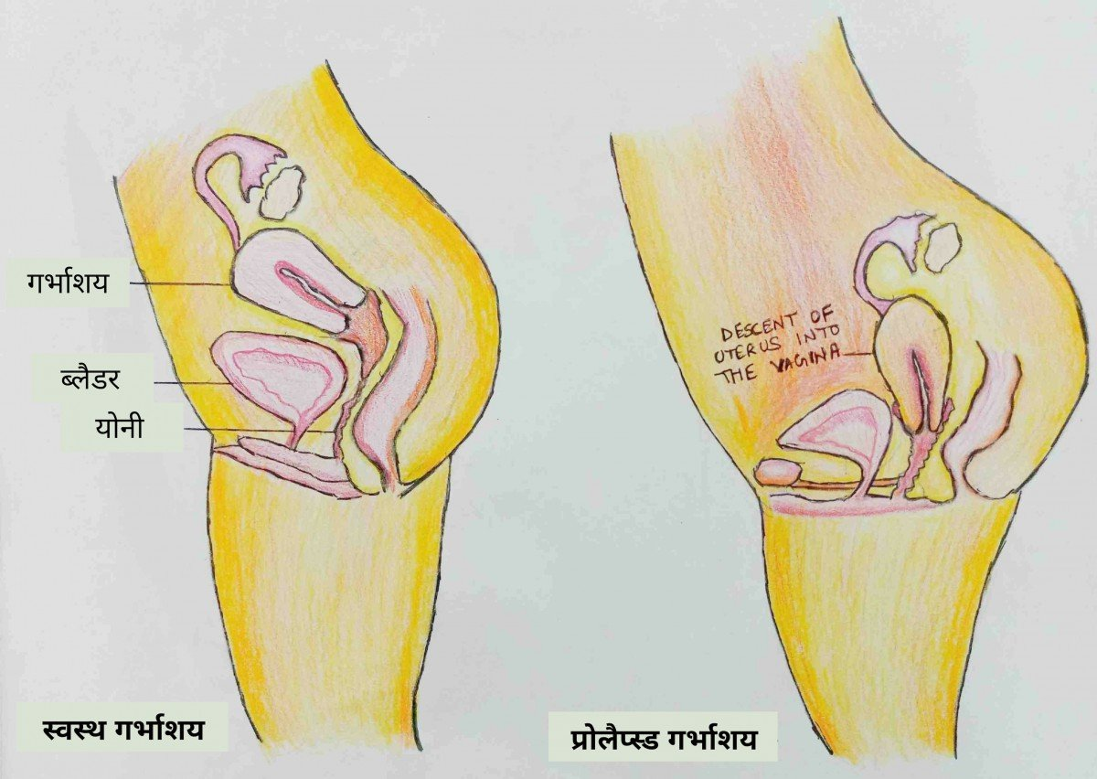 prolapse meaning in hindi