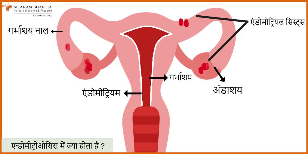 Endometriosis Meaning In Hindi - मेडिकल सहायता