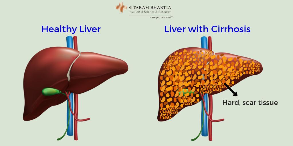 Liver Cirrhosis In Hindi - लीवर को हानि