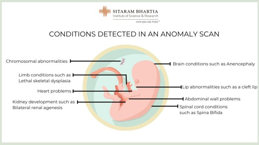 some conditions detected in anomaly scan